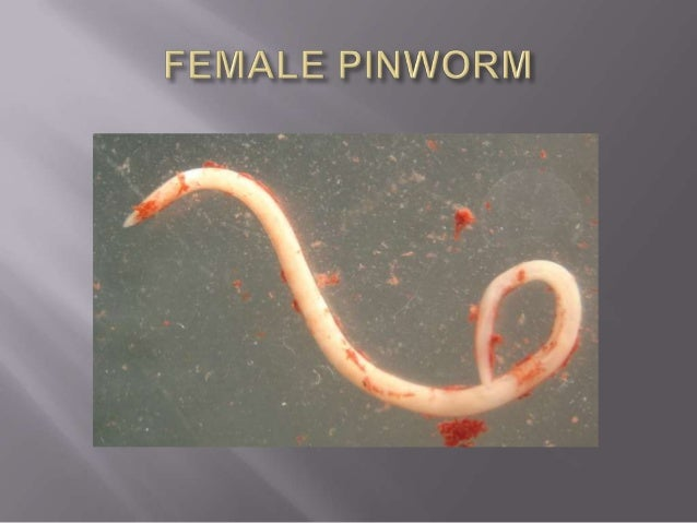 Enterobius vermicularis(PINWORM)