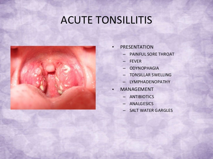 Natural Remedies Tonsillitis Babies