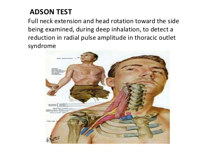 Adson