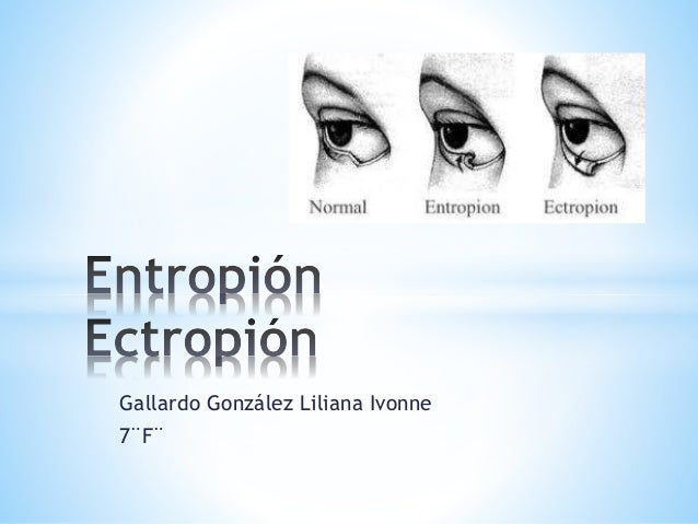 Gallardo González Liliana Ivonne 7¨F¨