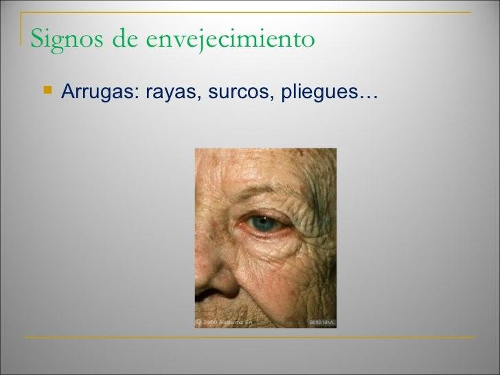 Signos de envejecimiento <ul><li>Arrugas: rayas, surcos, pliegues… </li></ul>