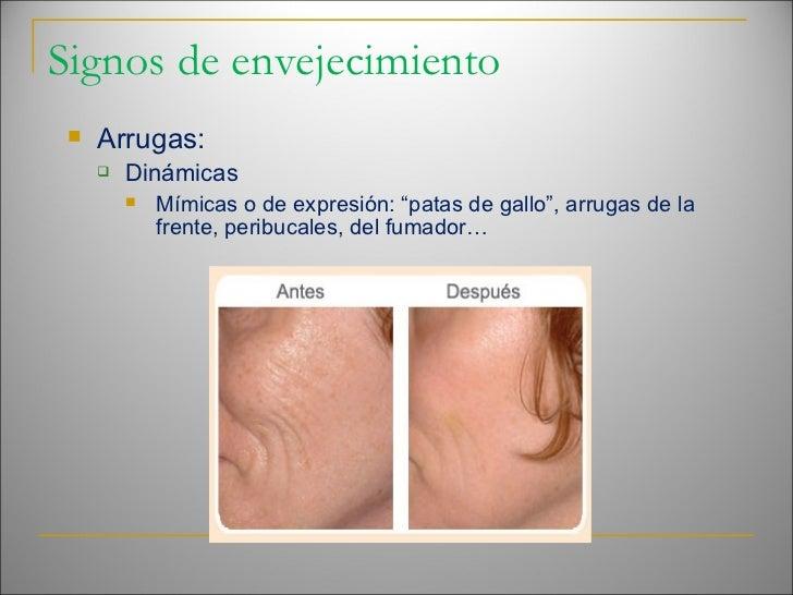 Signos de envejecimiento <ul><li>Arrugas: </li></ul><ul><ul><li>Dinámicas </li></ul></ul><ul><ul><ul><li>Mímicas o de expr...