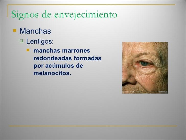 Signos de envejecimiento <ul><li>Manchas </li></ul><ul><ul><li>Lentigos: </li></ul></ul><ul><ul><ul><li>manchas marrones r...