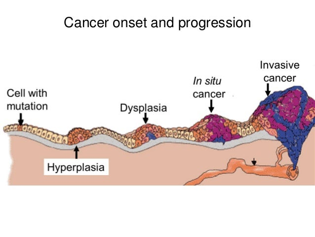 Cancer onset and progression