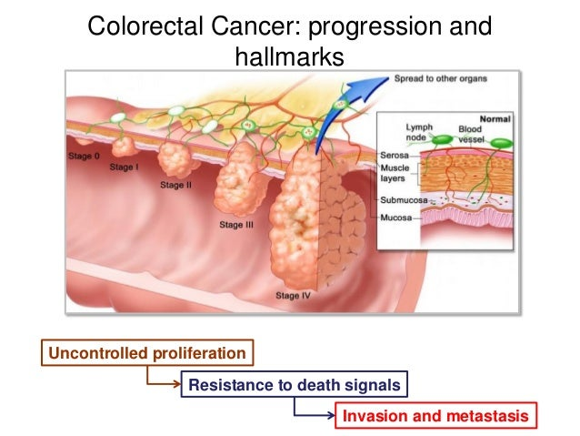 Colorectal Cancer: progression and hallmarks Uncontrolled proliferation Resistance to death signals Invasion and metastasis