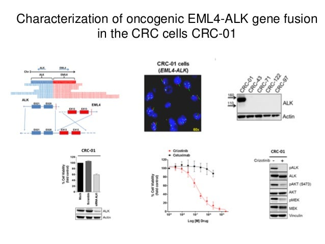 Characterization of oncogenic EML4-ALK gene fusion in the CRC cells CRC-01