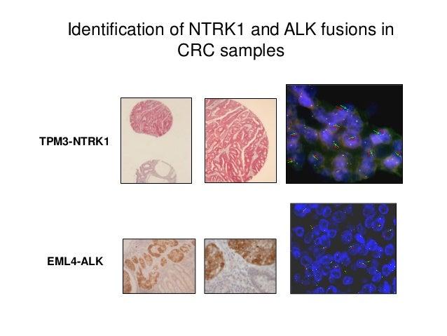 Identification of NTRK1 and ALK fusions in CRC samples TPM3-NTRK1 EML4-ALK