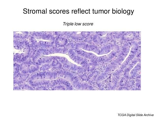 Stromal scores reflect tumor biology CAF++ score TCGA Digital Slide Archive