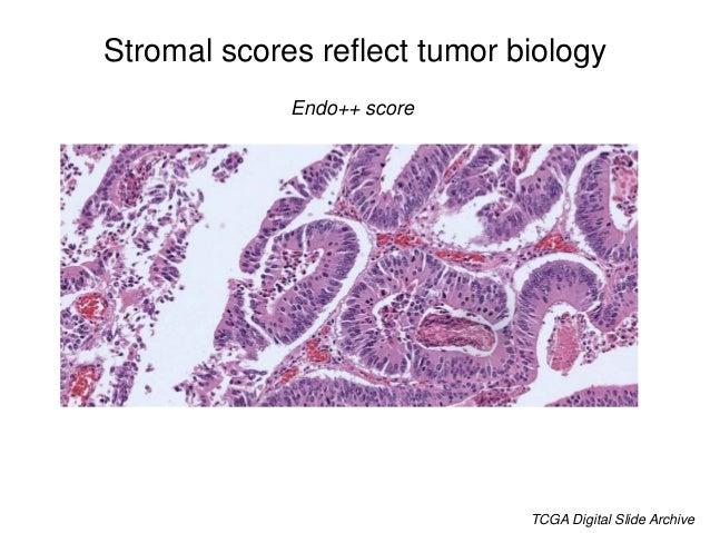 Stromal scores reflect tumor biology Leuco++ score TCGA Digital Slide Archive