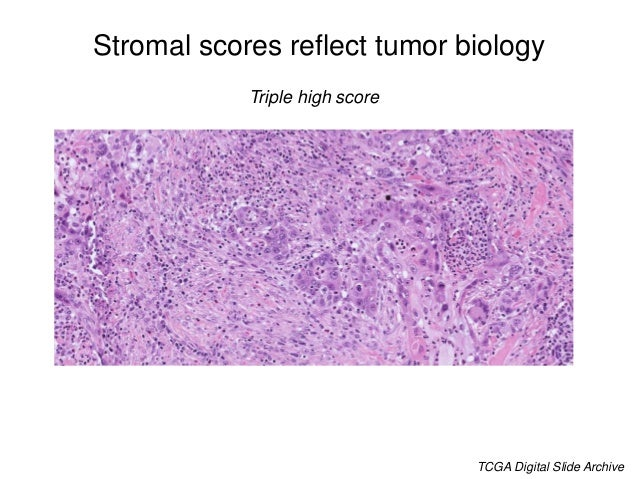 A CAF-specific score predicts CRC prognosis and treatment response All cases No Adjuvant Treatment Adjuvant Treatment Isel...