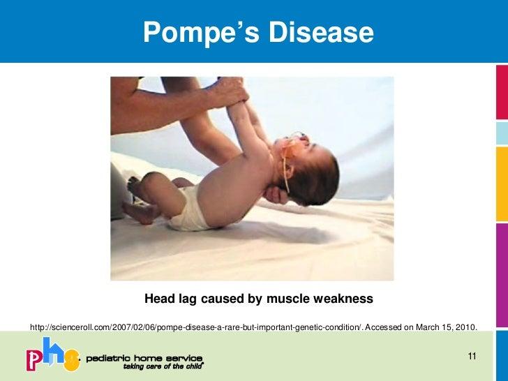 pompes disease
