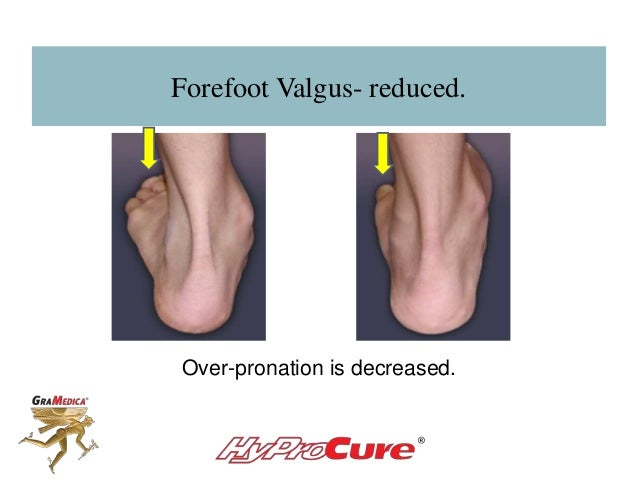 Forefoot Valgus- reduced. Over-pronation is decreased.