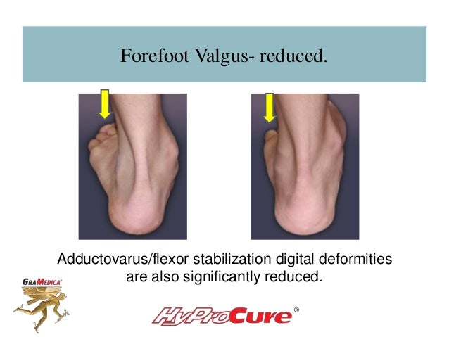 Forefoot Valgus- reduced. Adductovarus/flexor stabilization digital deformities are also significantly reduced.