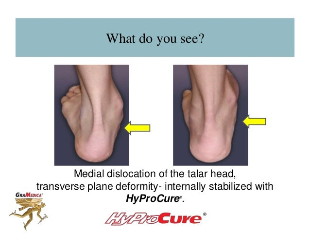 What do you see? Medial dislocation of the talar head, transverse plane deformity- internally stabilized with HyProCure® .