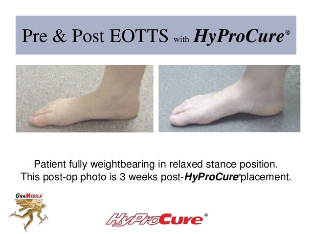 Pre & Post EOTTS with HyProCure® Patient fully weightbearing in relaxed stance position. This post-op photo is 3 weeks pos...