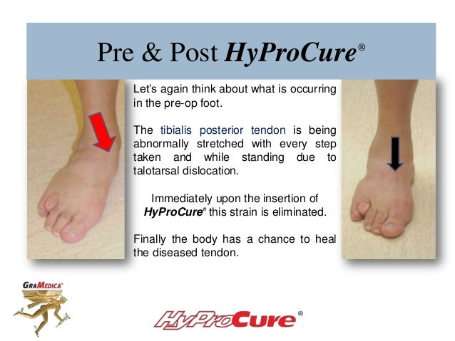 Pre & Post HyProCure® Let's again think about what is occurring in the pre-op foot. The tibialis posterior tendon is being...