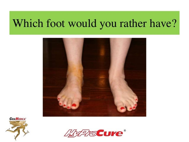 Which foot would you rather have?