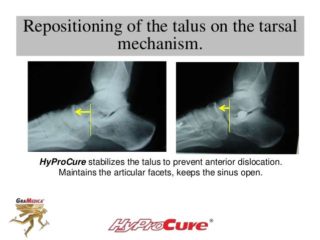 HyProCure stabilizes the talus to prevent anterior dislocation. Maintains the articular facets, keeps the sinus open. Repo...
