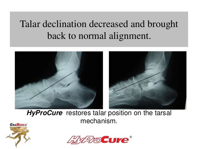 Talar declination decreased and brought back to normal alignment. HyProCure restores talar position on the tarsal mechanis...