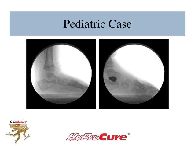 Pediatric Case