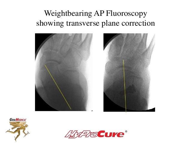 Weightbearing AP Fluoroscopy showing transverse plane correction