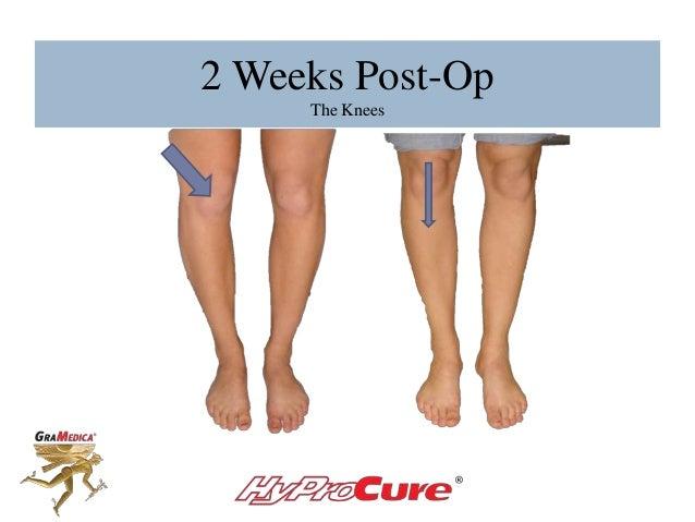 2 Weeks Post-Op The Knees
