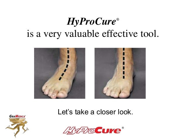 HyProCure® is a very valuable effective tool. Let's take a closer look.