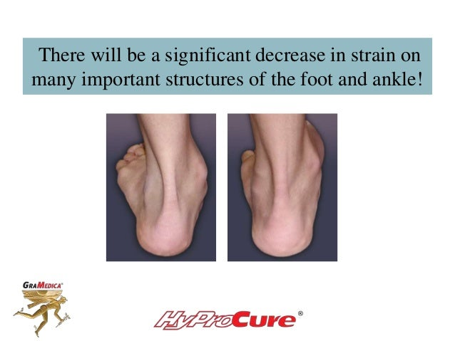 There will be a significant decrease in strain on many important structures of the foot and ankle!