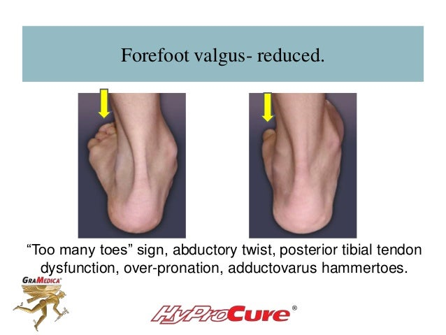 """Forefoot valgus- reduced. """"Too many toes"""" sign, abductory twist, posterior tibial tendon dysfunction, over-pronation, addu..."""