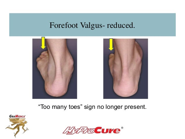 """Forefoot Valgus- reduced. """"Too many toes"""" sign no longer present."""