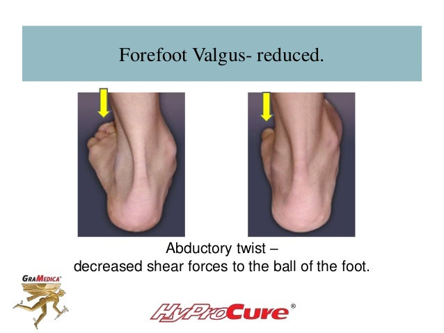 Forefoot Valgus- reduced. Abductory twist – decreased shear forces to the ball of the foot.