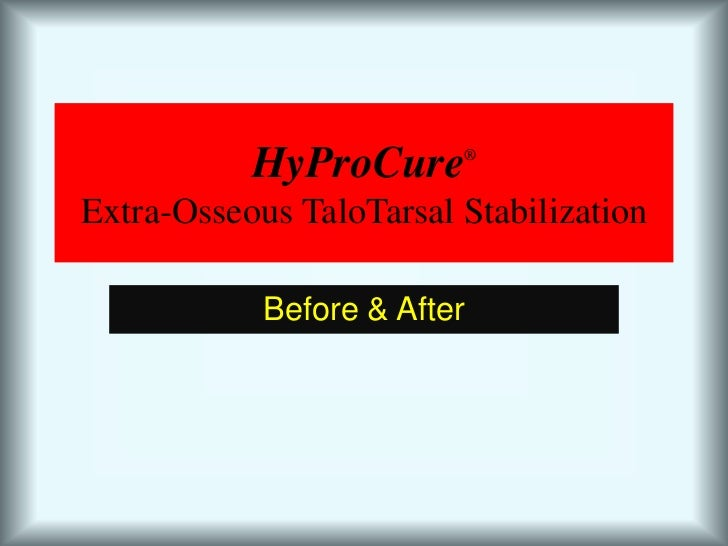 HyProCure®Extra-Osseous TaloTarsal Stabilization<br />Before & After<br />
