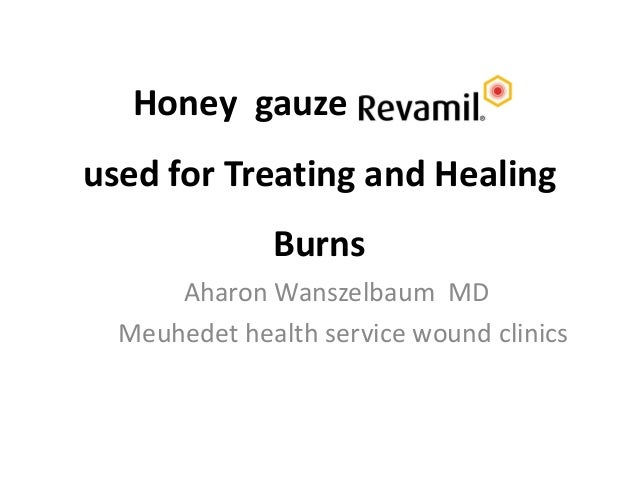 Honey gauze used for Treating and Healing Burns Aharon Wanszelbaum MD Meuhedet health service wound clinics
