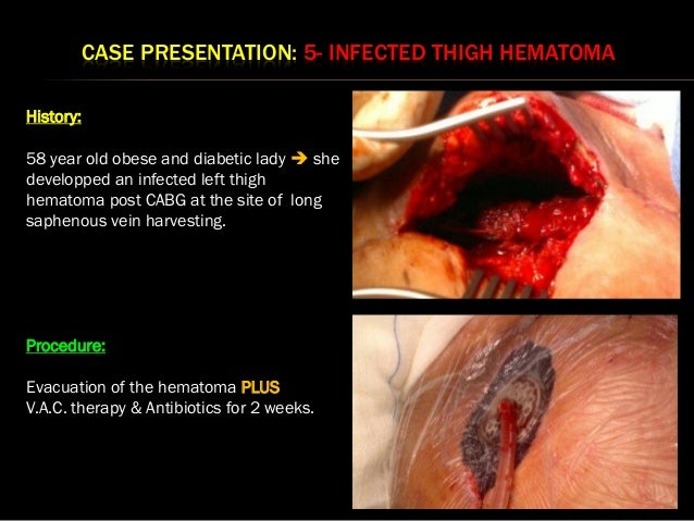 Ewma 2013 Ep489 Guidelines For The Use Of An Incision