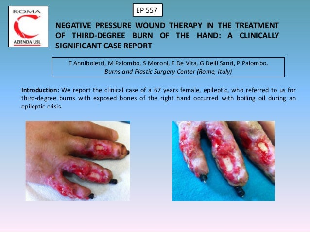 NEGATIVE PRESSURE WOUND THERAPY IN THE TREATMENT OF THIRD-DEGREE BURN OF THE HAND: A CLINICALLY SIGNIFICANT CASE REPORT T ...