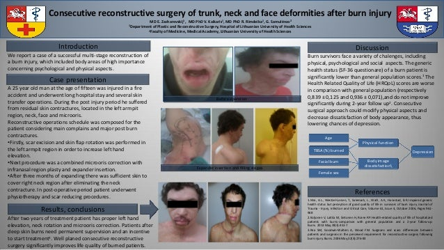 Consecutive reconstructive surgery of trunk, neck and face deformities after burn injury MD E. Zacharevskij1 , MD PhD V. K...