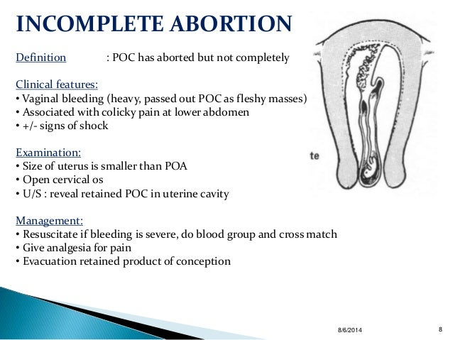 the definition of abortion Publications and journal articles related to unsafe abortion including global and regional estimates of the incidence of unsafe abortion and associated mortality.