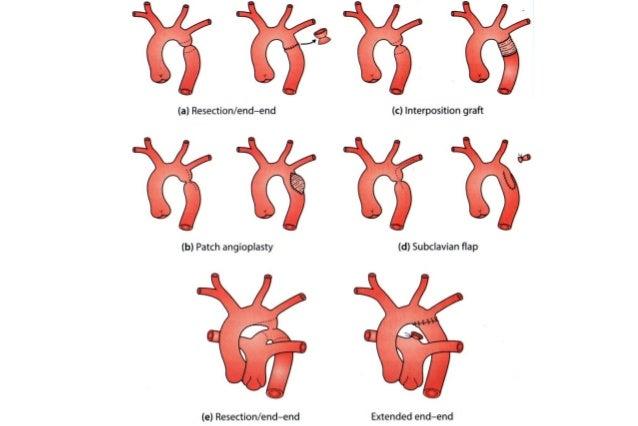 Coarctação da Aorta, Arco Aórtico interrompido e Estenose Pulmonar,