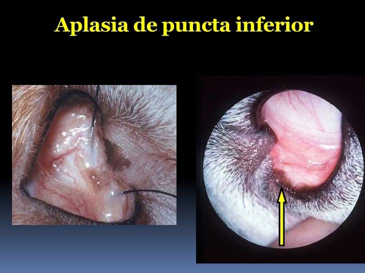 Medicamentoso ?A epífora é um Problema de drenagem lacrimal causado por:     Obstrução     Infecção     Estase de fluxo...