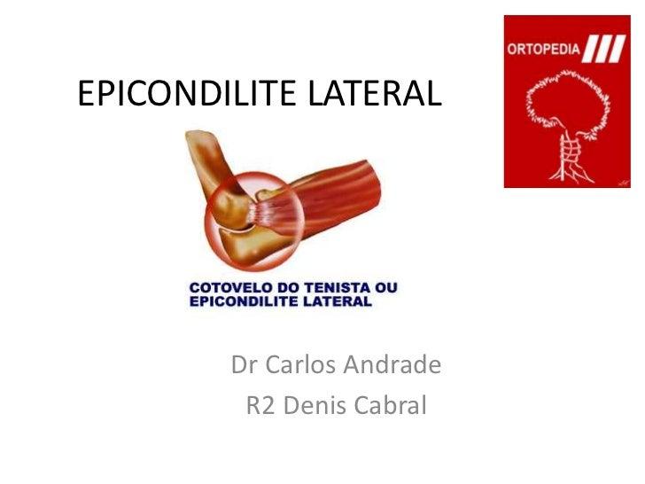 EPICONDILITE LATERAL<br />Dr Carlos Andrade<br />R2 Denis Cabral<br />