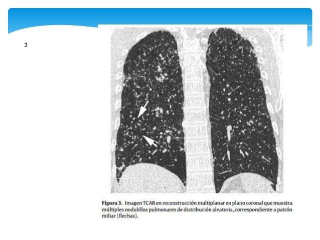 Técnicas broncoscópicas   Muestras citológicas del espacio alveolar (lavado  broncoalveolar-LBA)   muestras histológicas...