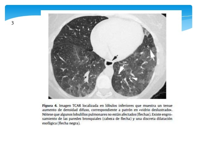 Lavado Broncoalveolar   Análisis celular e inmunocitoquimico.   En algunas EPID diagnóstico de certeza y evita biopsia  ...