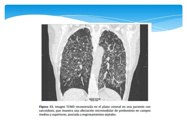 Neumonía Crónica en Organización  COP