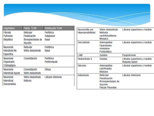  Antes BOOP (Bronquiolitis Obliterante con Neumonía  en Organización)   Clínica:   Historia de 4 – 6 semanas de sintoma...