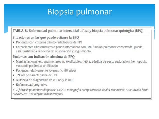  Nombre induce a error Más que descamación   Acumulación de Macrofagos.   Clínica:   Más frecuente en hombre, entre 4...