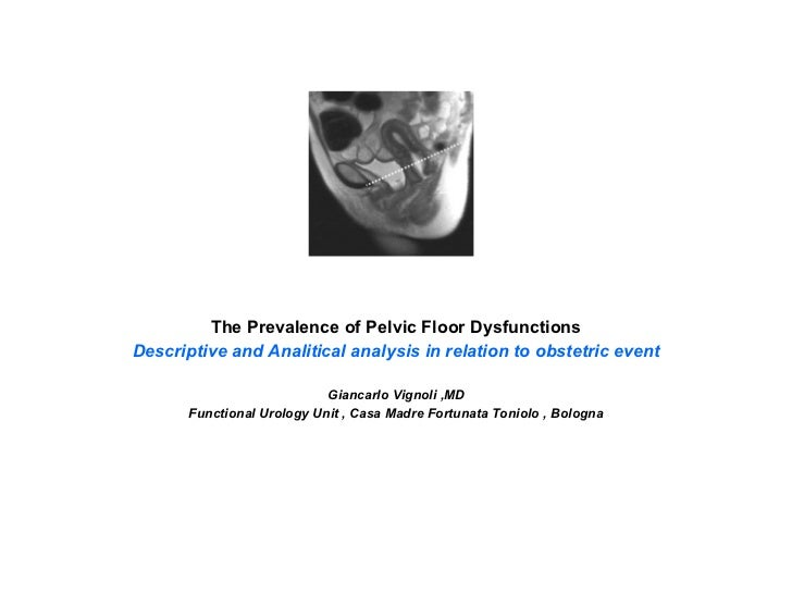 The Prevalence of Pelvic Floor Dysfunctions Descriptive and Analitical analysis in relation to obstetric event Giancarlo V...