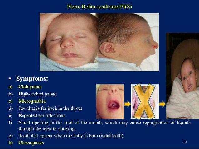 Pierre Robin syndrome - Wikipedia