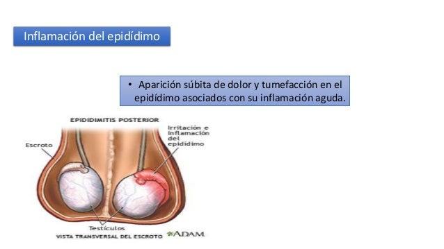 Epididimitis Y Orquitis Aguda Y Cronica 1