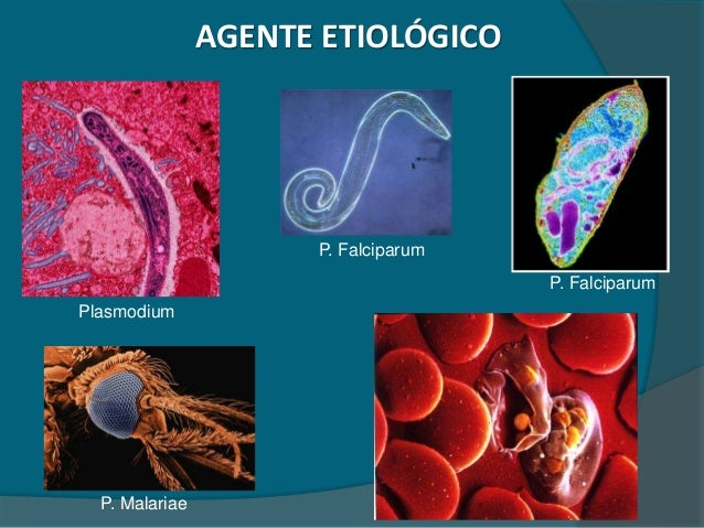 E. Coli and Urinary Tract Infection (UTI)