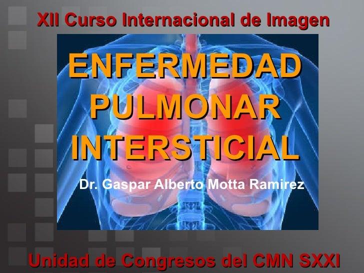 ENFERMEDAD PULMONAR INTERSTICIAL Slide 3